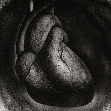 Brian D. Cohen- Heart